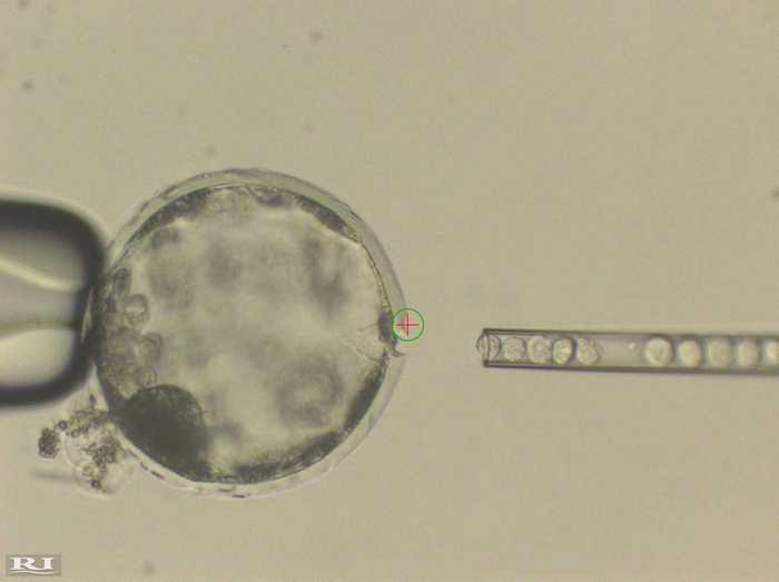 Cette image montre l'injection de cellules humaines iPS dans un blastocyste de cochon. Un flux de laser (cercle vert avec une croix rouge dedans) a été utilisé pour perforer une ouverture dans la membrane externe (Zona Pellucida) du blastocyste du cochon afin d'avoir un accès facile pour l'injection des cellules humaines iPS - Crédit : Juan Carlos Izpisua Belmonte