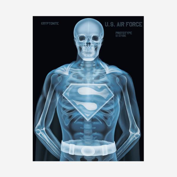 Superman_Skeleton_Off