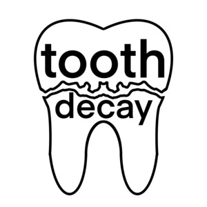 Tooth Decay Collection