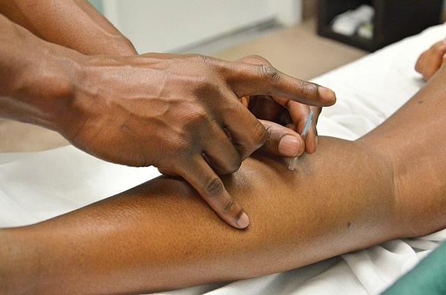acupuncture acupuncteur