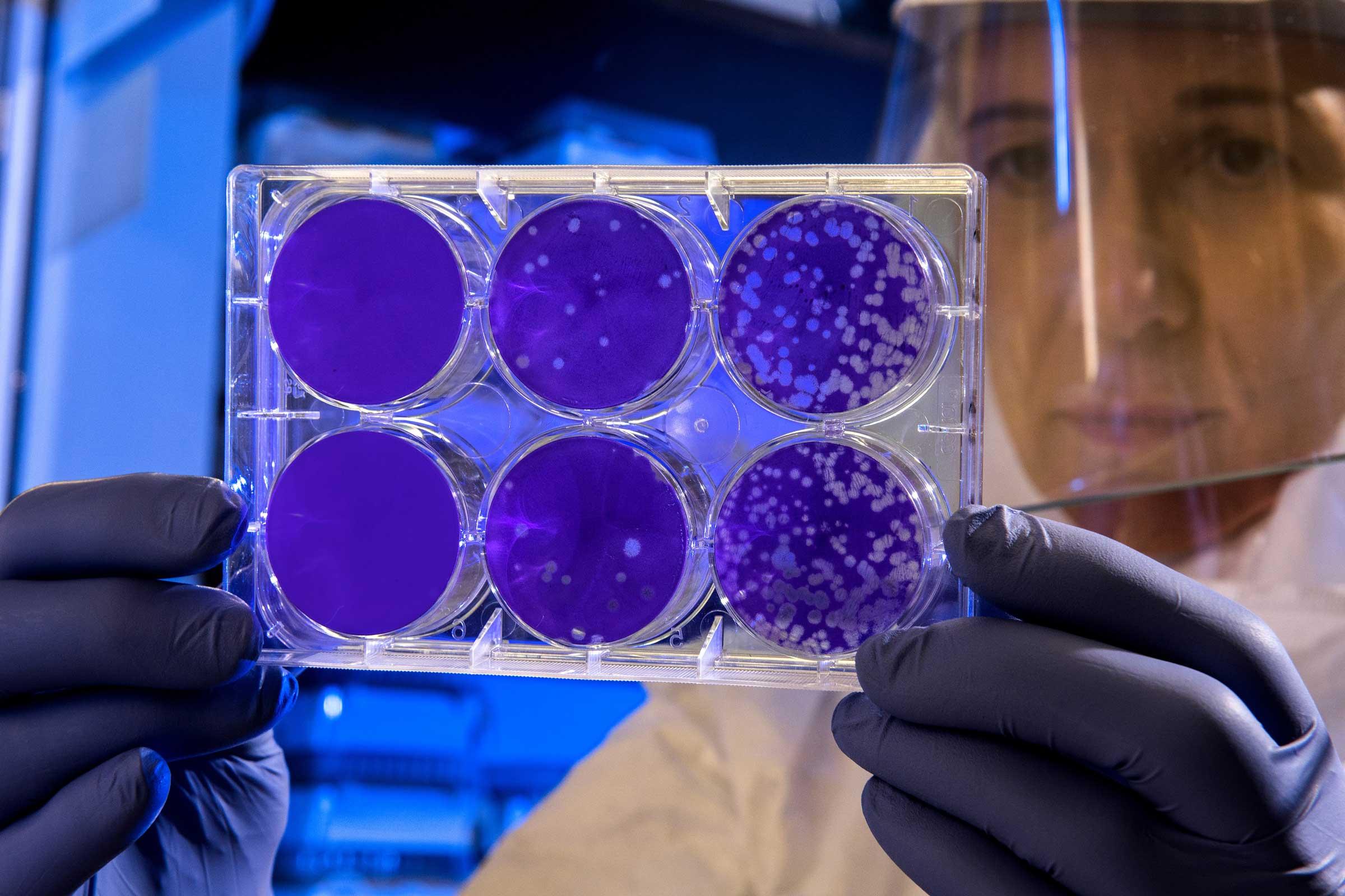 Blog Doctoome   Coronavirus en Chine : que sait-on de ce nouveau virus ?