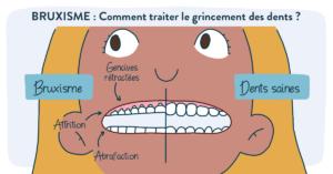 Bruxime-grincement-des-dents