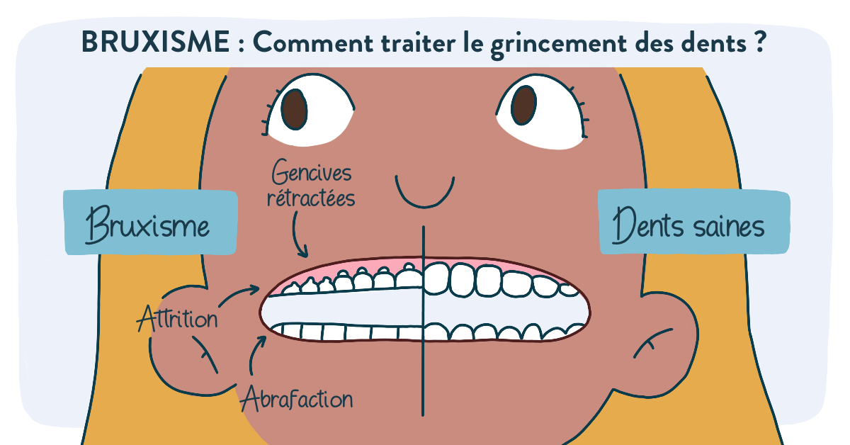 Bruxime-grincement-des-dents