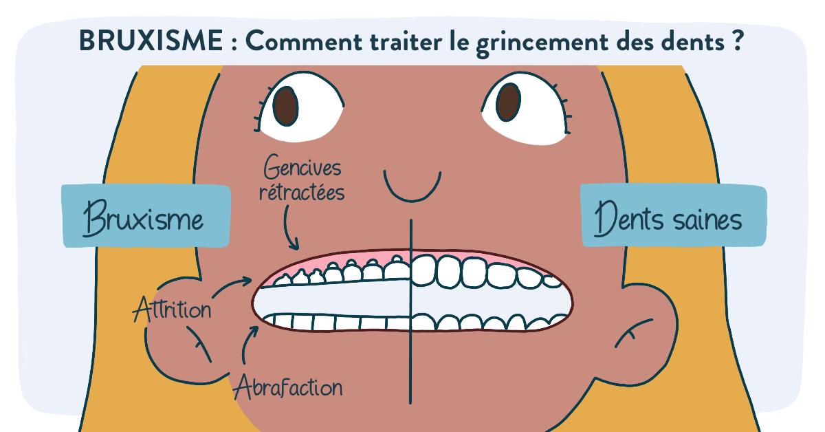 Bruxisme : comment traiter le grincement des dents ?