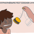 hyperphagie-hypnose-herve-prouteau