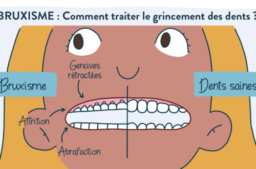 bruxisme : causes et traitement : éviter le grincement des dents