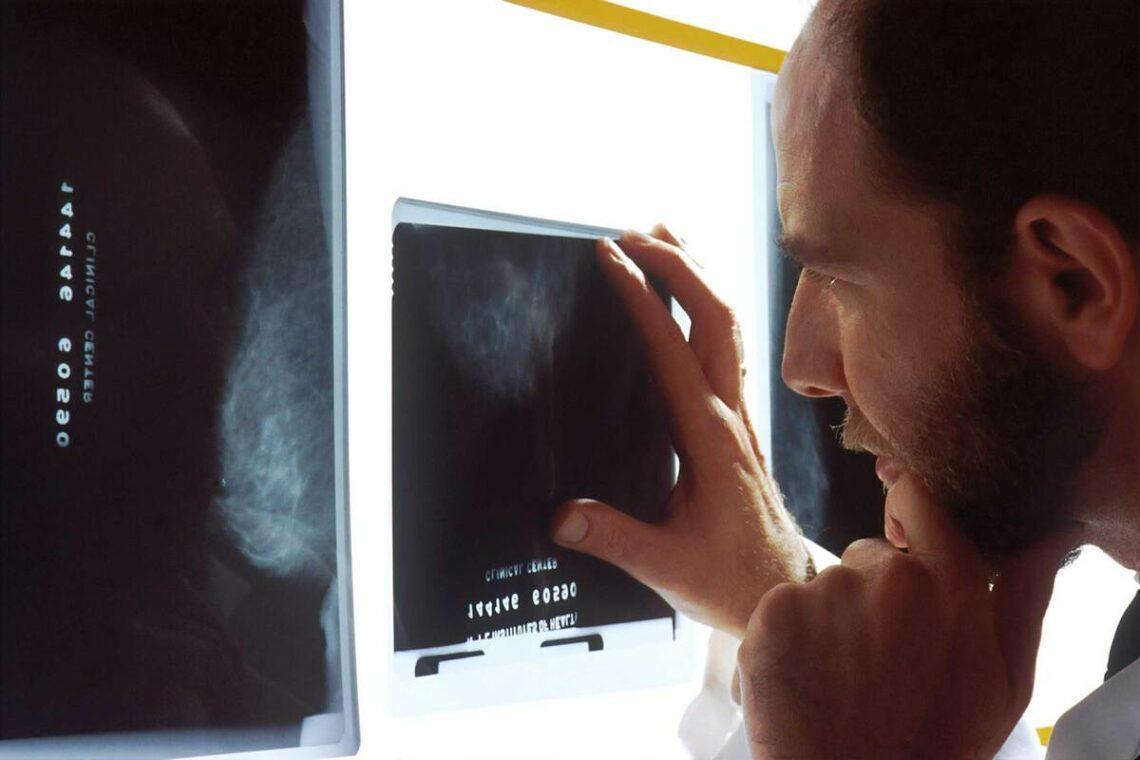 surdiagnostic cancer thyroïde
