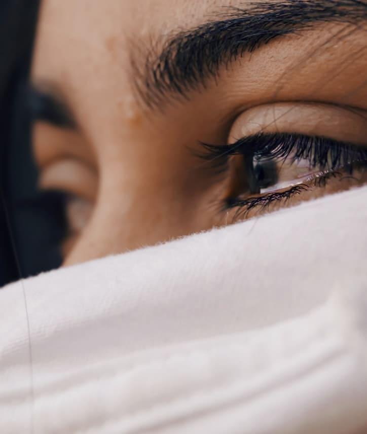 effets psychologiques : vitiligo