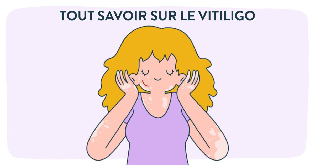 Vitiligo : Causes, symptômes et traitements.