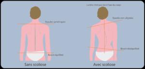 Diagnostic scoliose