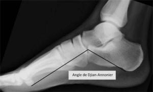 semelles-orthopediques-angle