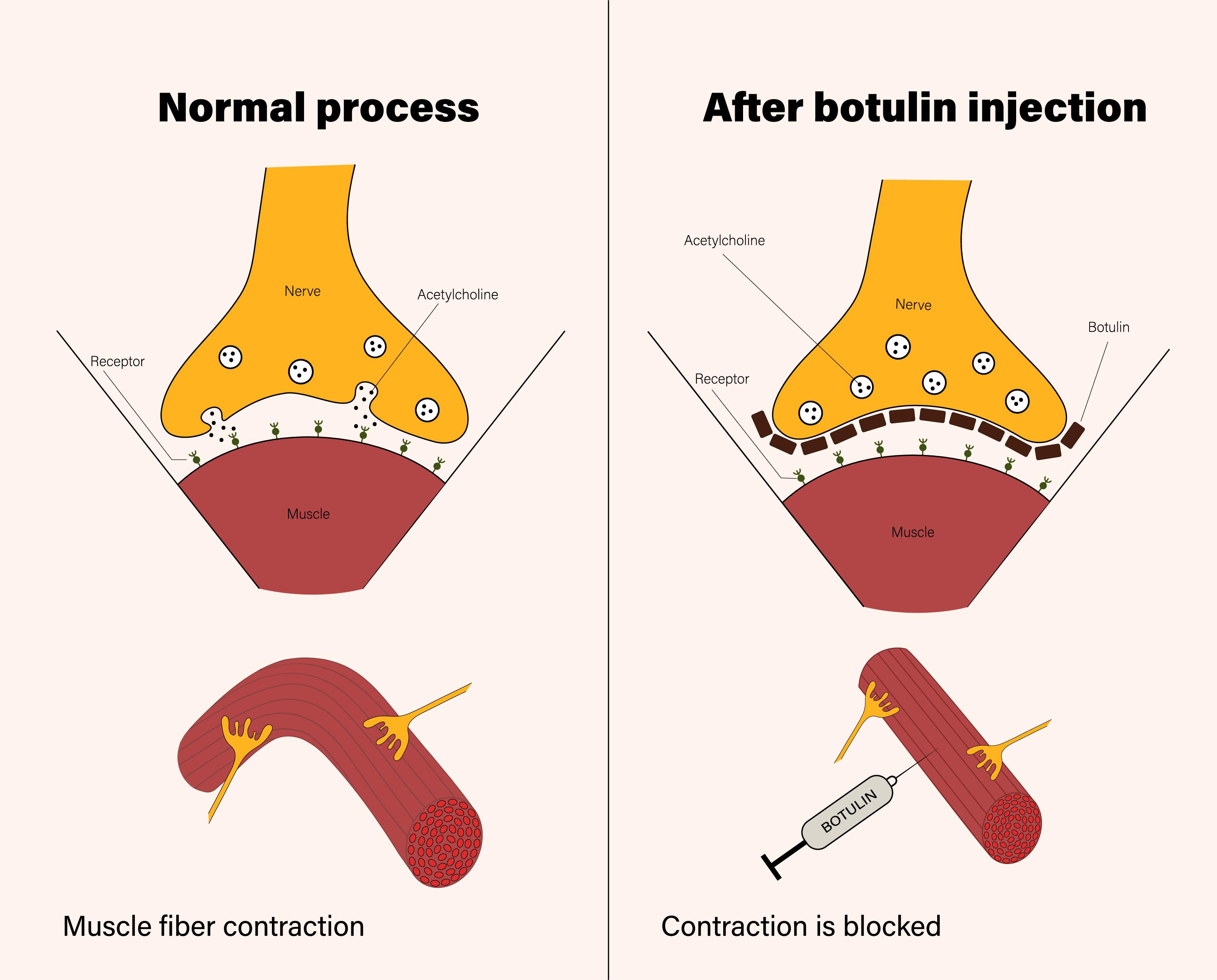 Hoe werkt botulinetoxine?