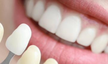 Zahnfarben-Palette