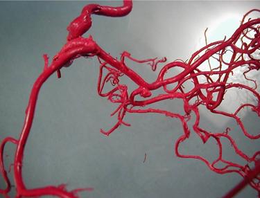Human brain vessel model Charles Kerber