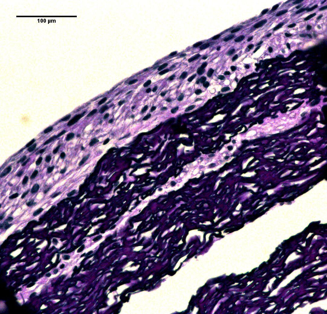 biomimetic vascular graft