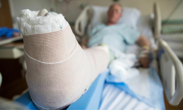 Man in hospital with a broken leg