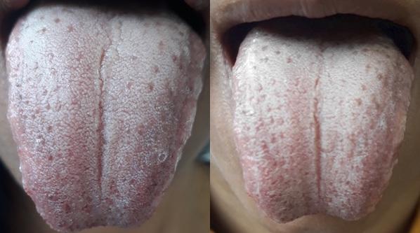 Migraine Patient Tongue