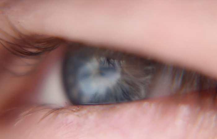 La première thérapie optogénétique pour redonner la vue aux personnes atteint de cécité ou d'une maladie comme la rétinite pigmentaire