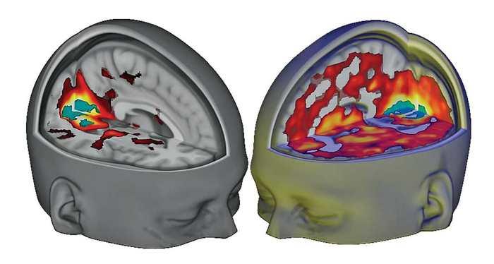 La première imagerie cérébrale de l'influence du LSD sur le cerveau