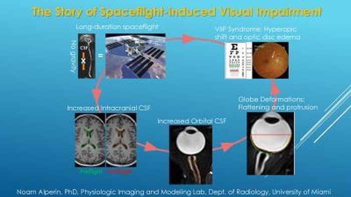 Un problème visuel qui affecte les astronautes pendant leurs longues missions dans l'espace est lié à des changements de volume dans le liquide céphalo-rachidien qui se trouve autour du cerveau et de la moelle épinière.