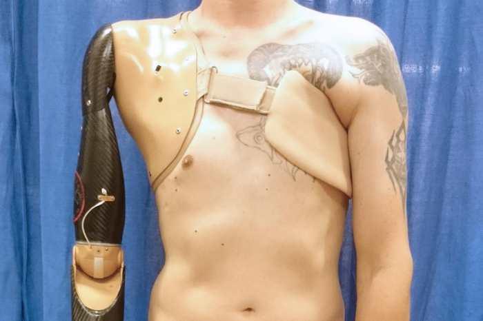 Les scientifiques ont développé une technologie de capteur pour une prothèse du bras qui détecte les signaux provenant des nerfs de la moelle épinière.