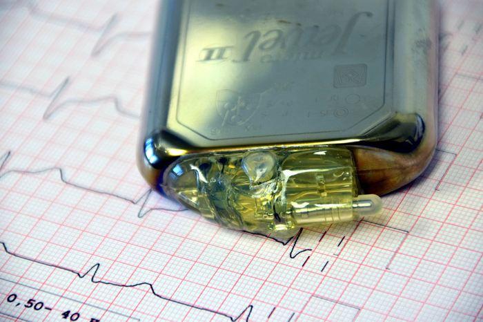 Une recherche suggère que les Pacemakers et d'autres appareils cardiaques peuvent aider à résoudre des cas médico-légaux en déterminant l'heure et la cause de la mort.