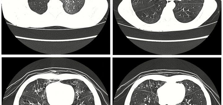 La tomodensitométrie à haute résolution du poumon d'un patient, qui souffre de Popcorn Lung - Crédit : Xie B-Q, Wang W, Zhang W-Q, Guo X-H, Yang M-F, Wang L, et al. (2014) Ventilation/Perfusion Scintigraphy in Children with Post-Infectious Bronchiolitis Obliterans: A Pilot Study. PLoS ONE 9(5): e98381. https://doi.org/10.1371/journal.pone.0098381