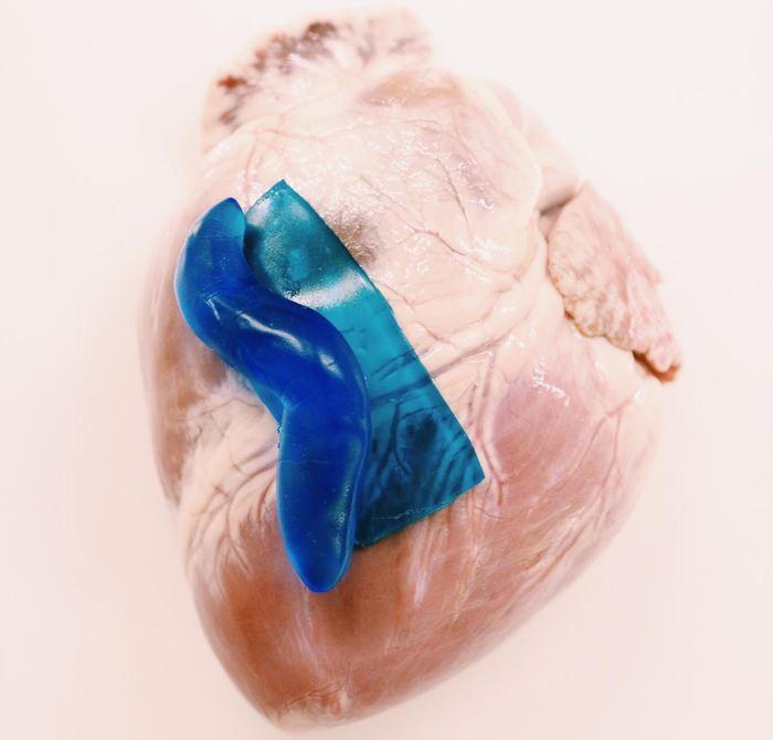 Les chercheurs ont découvert une colle forte qui possède des propriétés remarquables pour guérir les blessures. C'est une limace qui leur a donné l'idée de cette colle.