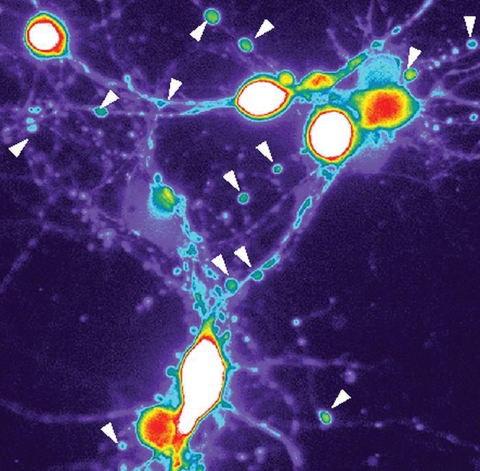 Les neurones, traités avec des protéines associées à l'Alzheimer, montrent une augmentation drastique de calcium (bleu, vert, jaune et rouge au blanc) et les cellules forment des structures en forme de perles remplies avec des tau (les flèches) identiques aux neurones chez les patients atteints d'Alzheimer - Crédit : Cohen Lab, UNC School of Medicine