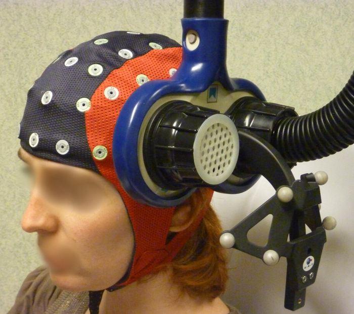 C'est une stimulation magnétique (appareil bleu) qu'on applique sur une zone localisée du cerveau en temps réel avec l'IRM du patient - Crédit : Université de Caen