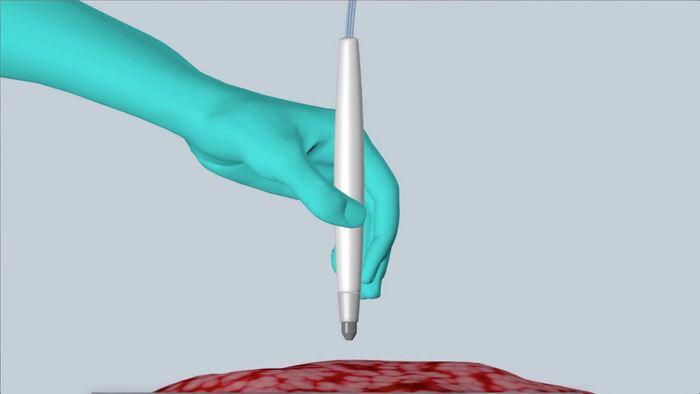 Les chercheurs ont inventé un appareil appelé MasSpec Pen qui peut détecter un cancer en 10 secondes ce qui est largement plus rapide que la méthode actuelle. Cet appareil est conçu pour être utilisé par le chirurgien lorsqu'il supprime le tissu cancéreux pour déterminer qu'il a supprimé le maximum du cancer pendant la procédure.