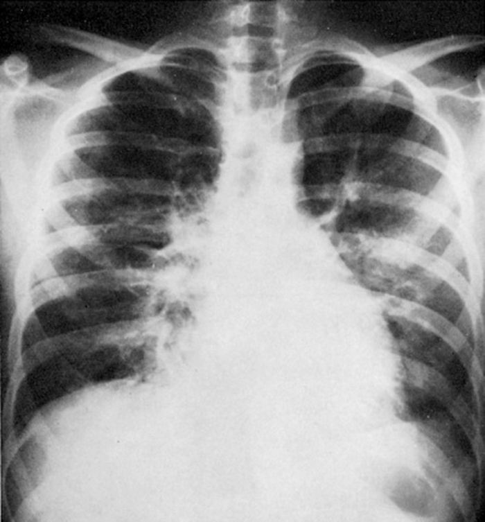 Un poumon touché par la peste pulmonaire provenant d'une radio d'un patient d'une épidémie de peste pulmonaire au Mexique -  Dr. Dennis Alsofrom et al and Radiology, 1981