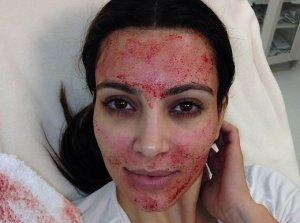 Kim Kardashian avait publié cette photo montrant une thérapie de cellules souches pour améliorer son visage. Sauf qu'on avait simplement tripaturé son propre sang pour le plaquer sur son visage... Son praticien a réussi à lui vendre un masque sanguin en le faisant passer pour une thérapie de cellules souches - Crédit : ipscell.com