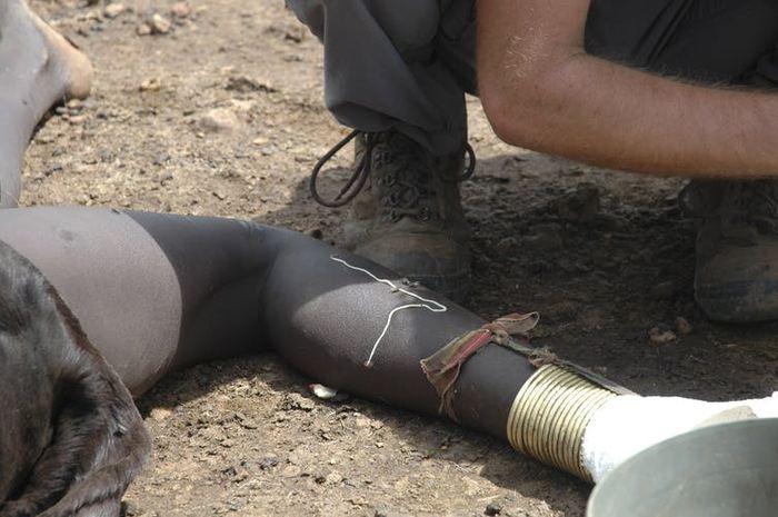Une fille à Juba au Sud Soudan dont on extrait un ver de Guinée - Reuters/Skye Wheeler