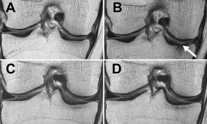 Des IRM du genou droit de 2 femmes obèses. La première qui n'a pas perdu de poids (A et B) et la seconde qui a perdu du poids (C et D) - Crédit : Radiological Society of North America