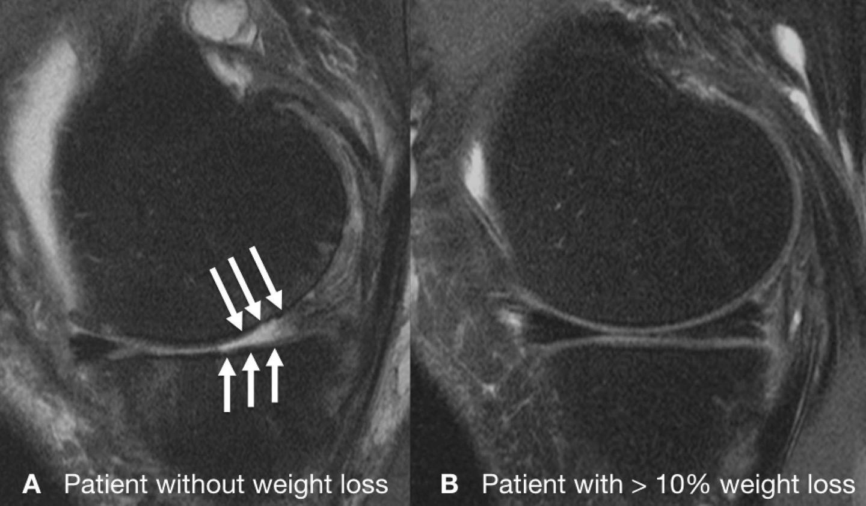 Une articulation du genou d'un patient sans perte de poids (A) montrant plusieurs défauts graves du cartilage après 48 mois et une articulation intact du genou d'un patient avec une perte significative du poids (B) - Crédit : Radiological Society of North America