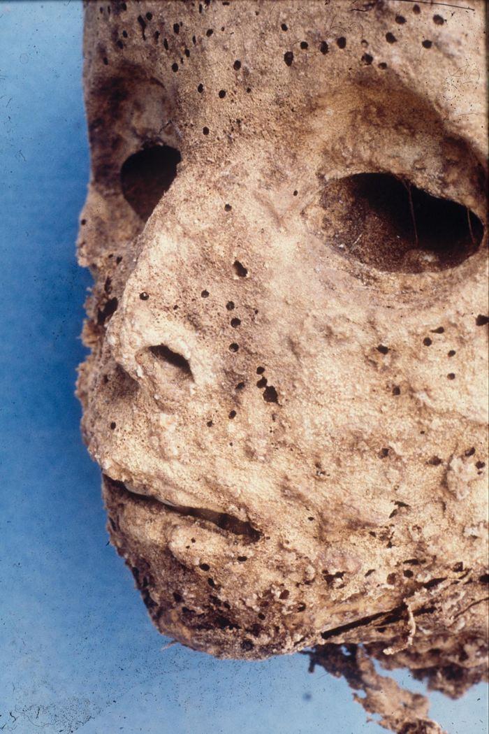 Une nouvelle analyse d'une momie d'enfant en Italie suggère qu'elle a eu l'hépatite B alors que les précédentes analyses avaient suggéré la variole. Cela démontre que l'hépatite B est présente chez les humains depuis des siècles et ce type permet de comprendre les épidémies du passé.