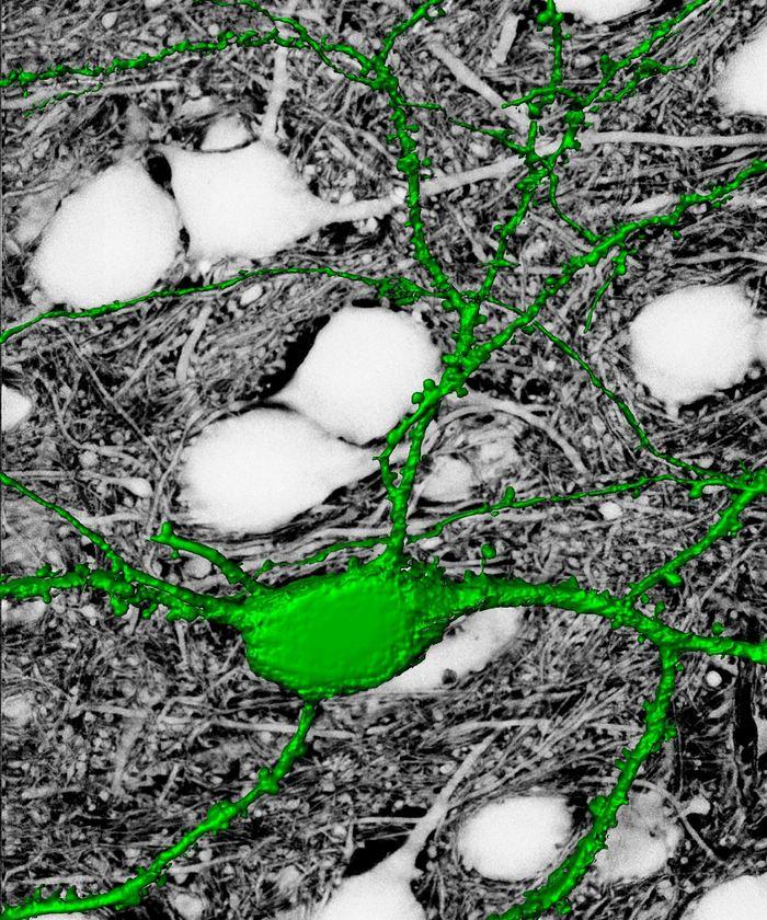 Cette nouvelle technique d'imagerie appelée SUSHI révèle le contexte anatomique complet qui entoure un neurone individuel fluorescent (en vert) - Crédit : UV Nägerl (CNRS & Université de Bordeaux)