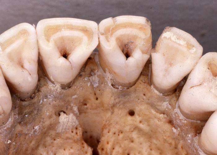 """Des incisives supérieures humaines avec un """"pelletage"""" prononcé qui est une variation anatomique influencé par l'allèle EDAR V370A avec une augmentation de la structure des canaux galactophores (mammaires) - Crédit : Christy G. Turner, II, courtesy G. Richard Scott"""