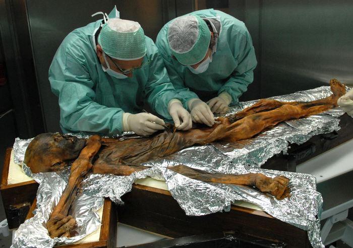 Analyse du contenu de l'estomac d'Otzi - Crédit : Southtyrolarchaeologymuseum\Eurac\M.Samadelli