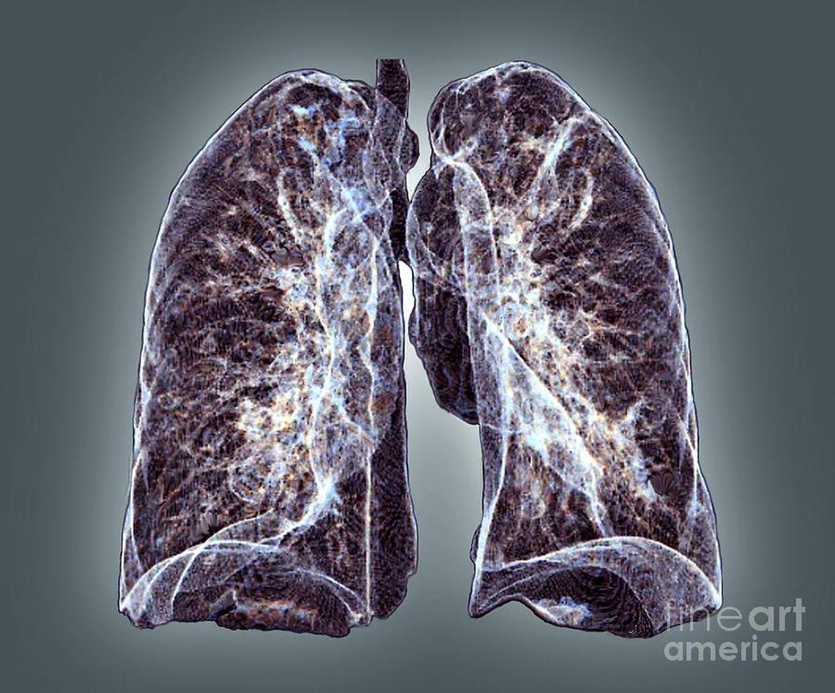 Des poumons en bonne santé. Tomodensitométrie 3D colorée (CT) des poumons d'un patient âgé de 37 ans - Crédit : Zephyr/fineartamerica.com