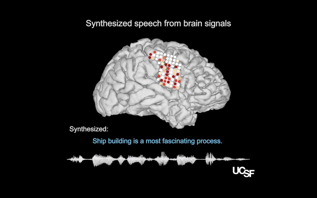 Les chercheurs ont réussi à créer une voix synthétique qui est uniquement générée par l'activité cérébrale. La promesse est de redonner la voix à ceux qui sont atteints de déficience vocale.