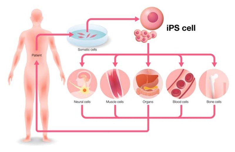 Les cellules adultes sont extraites des patients, transformées en cellules souches pluripotentes dites induites, puis, à l'aide de divers produits chimiques, les cellules sont différenciées en différents types de tissus. Idéalement, ceux-ci sont ensuite transplantés dans le même patient pour réparer leurs tissus endommagés - Crédit : metamorworks/Shutterstock.com