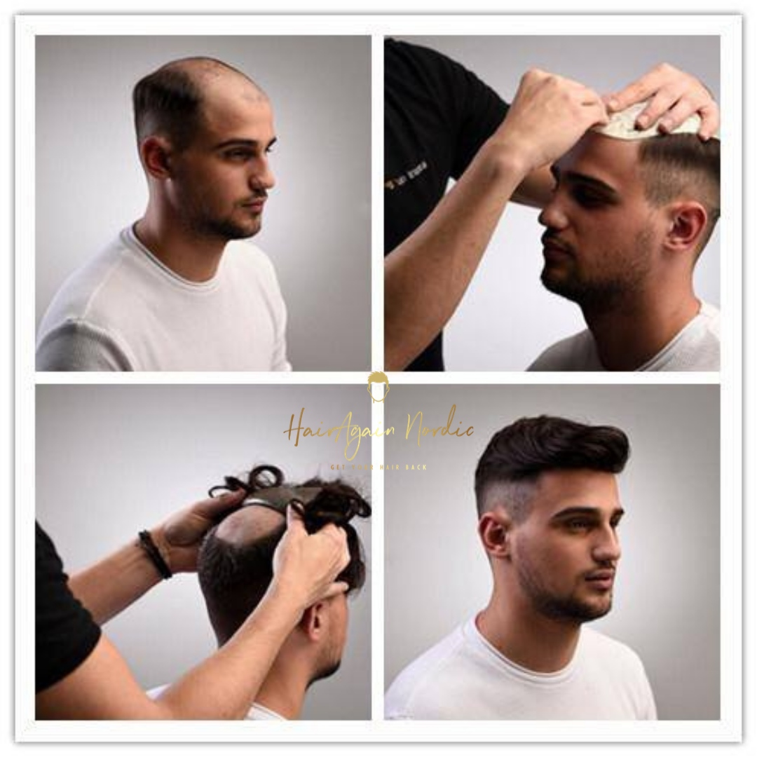 Före/Efter bild på man med hårdel, hårsystem, tupé
